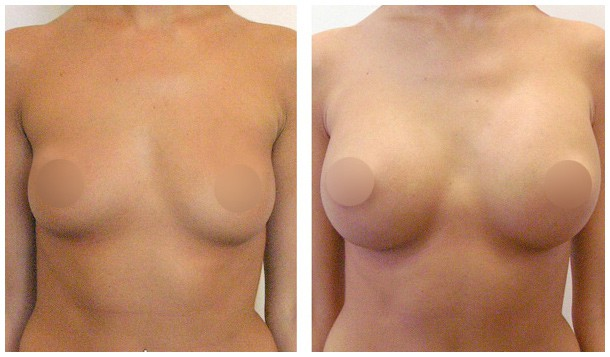 breast cream foto