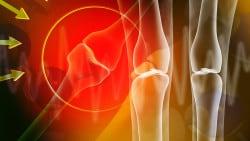 Osteoren: una crema contro dolori articolari e mal di schiena