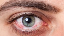 Occhi: curali con la medicina naturale