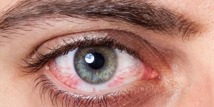 occhi irritati