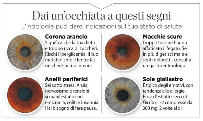 iridologia-sintomi